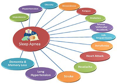 Sleep-Apnea-Complications